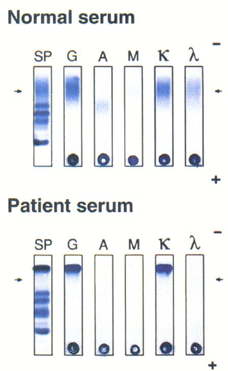 Bence Jones Proteinuria c. Bone marrow karyotype with t(8:14) d. Reactive  amyloidosis e. Hematocrit of 62%