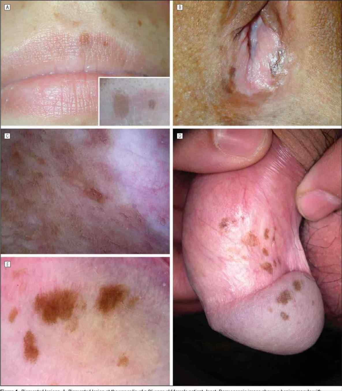 benign juvenile melanoma is free HD wallpaper. This wallpaper was upload at  September 20, 2018 upload by adminsorias in Skin Cancer.