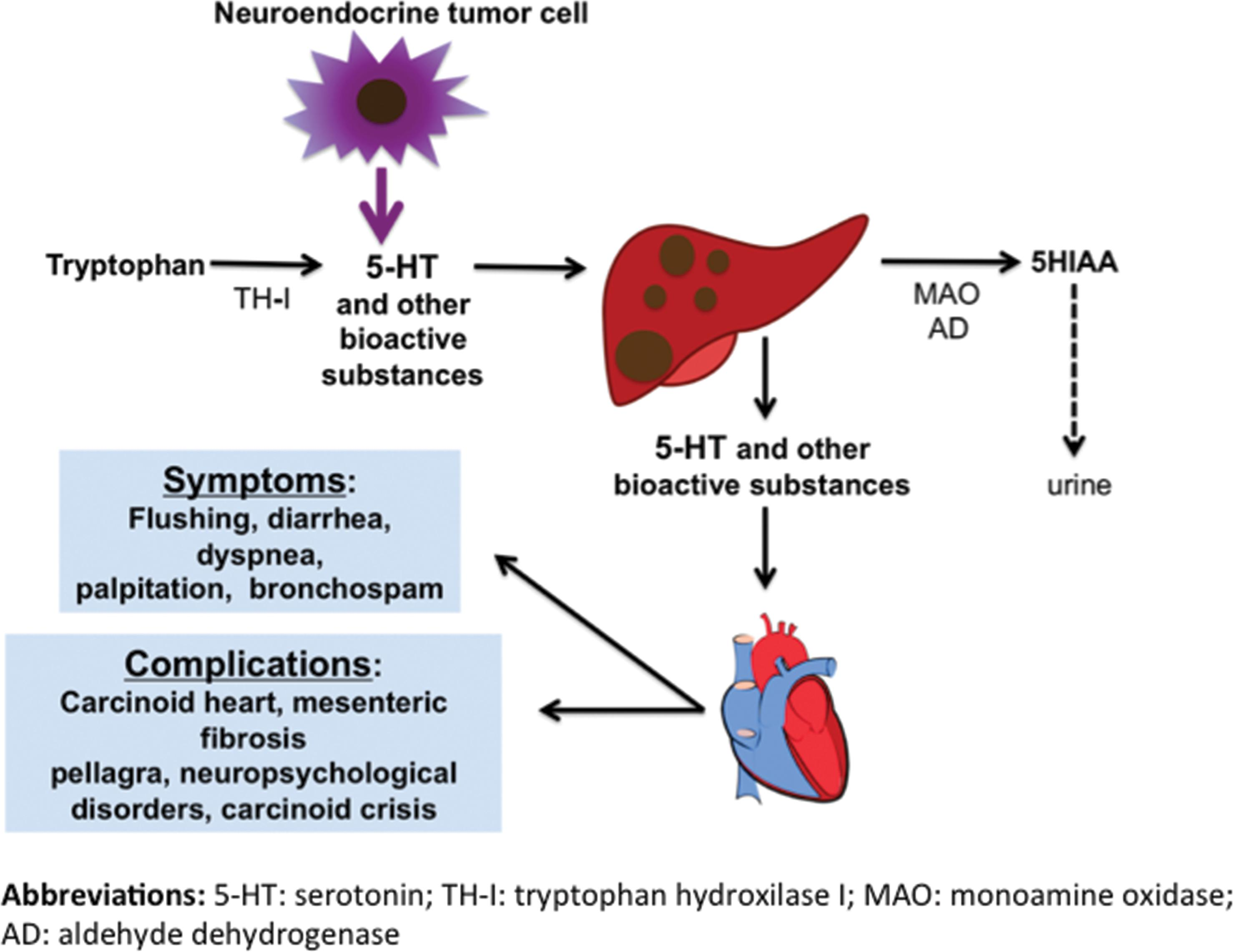 Figure 1 Summary of the pathophysiology of carcinoid syndrome.