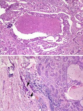 Salivary duct carcinoma ex pleomorphic adenoma. Im