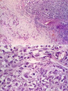 Undifferentiated carcinoma ex pleomorphic adenoma.