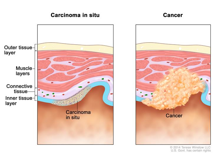 Carcinoma in situ (CIS) is a group of abnormal cells that are found only in  the place where they first formed in the body (see left panel).