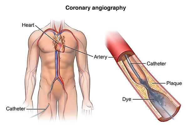 PCardio_20140401_v0_006. Generally, a cardiac cath