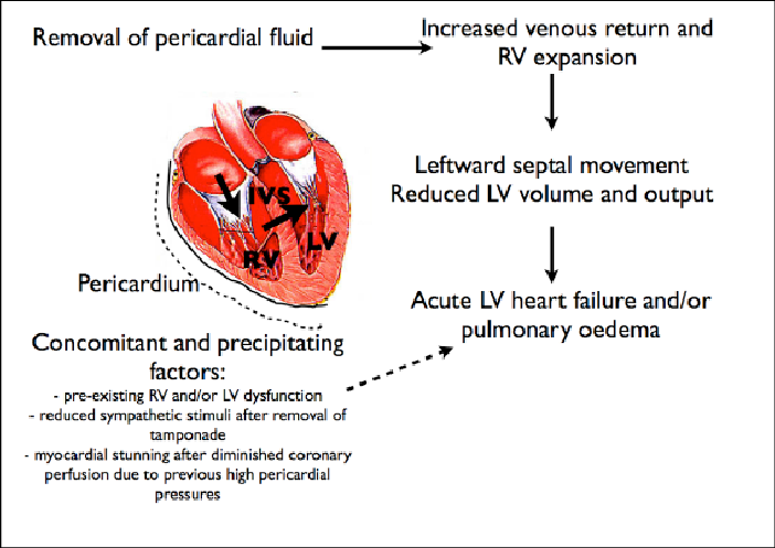 Possible pathophysiology of cardiac decompression syndrome after  pericardial drainage (see text for explanation).