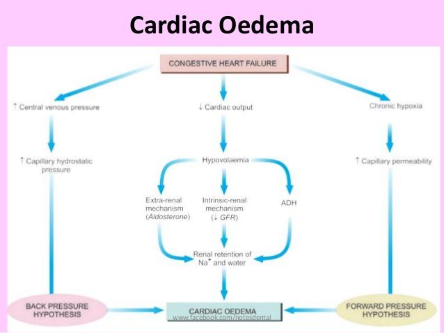 Cardiac Oedema www.Traveller Location/notesdental