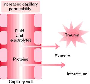 cardiac edema