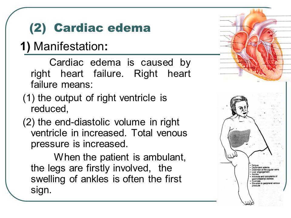 (2) Cardiac edema 1) Manifestation: