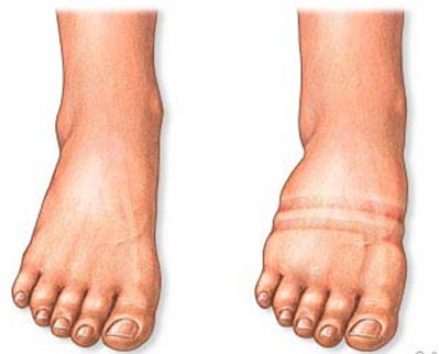 Edema is considered the cardinal feature of cardiac failure for decades. It  is one of the minor criteria of the Framingham protocol to diagnose cardiac