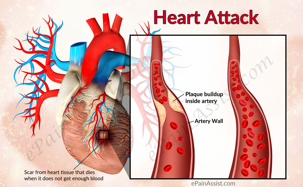what is defibrillation of the heart