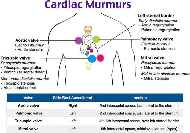 Auscultating Cardiac Murmurs. ***timing of aortic valve murmurs- Systolic =  stenosis, diastolic = regurgitation***