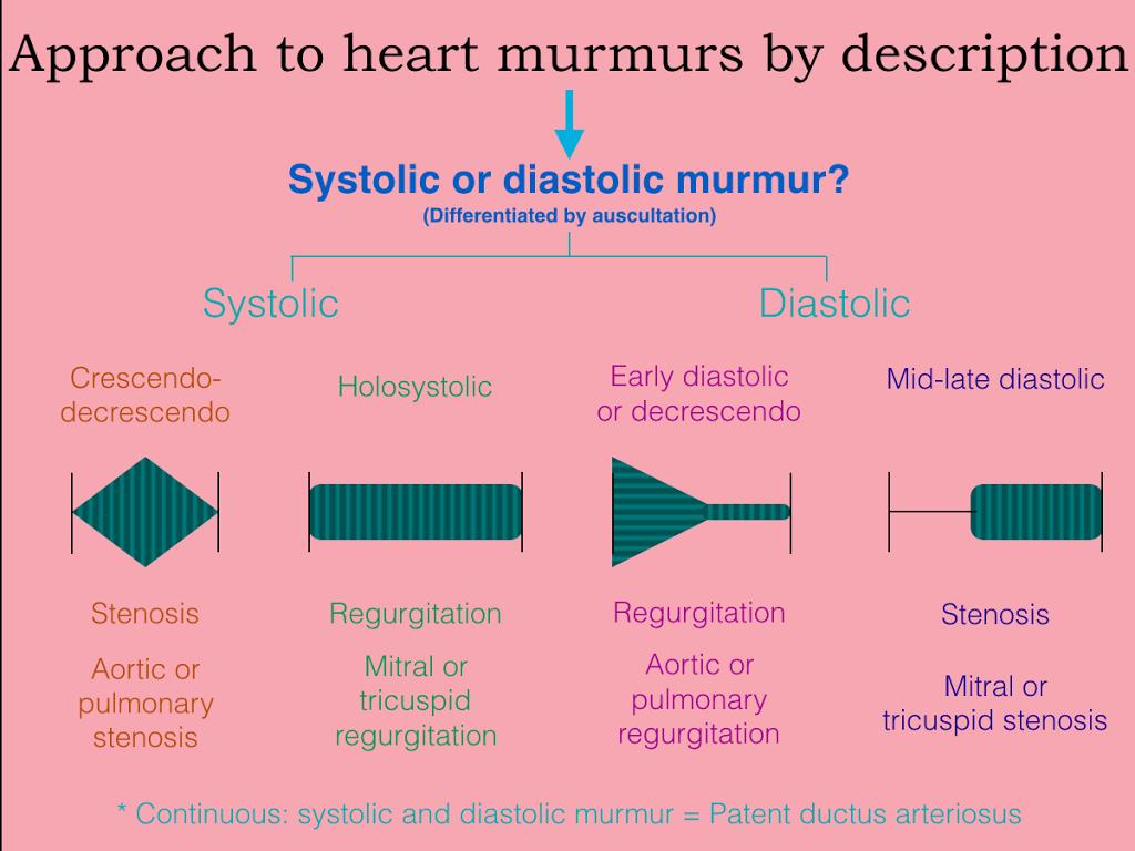 cardiac murmur