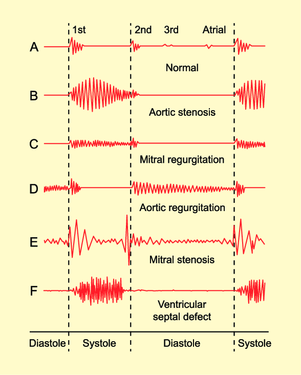 Phonocardiograms from normal and abnormal heart sounds. Adapted from  Traveller Location