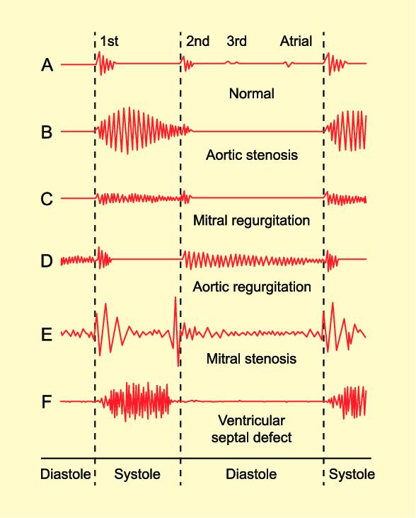 cardiac sound