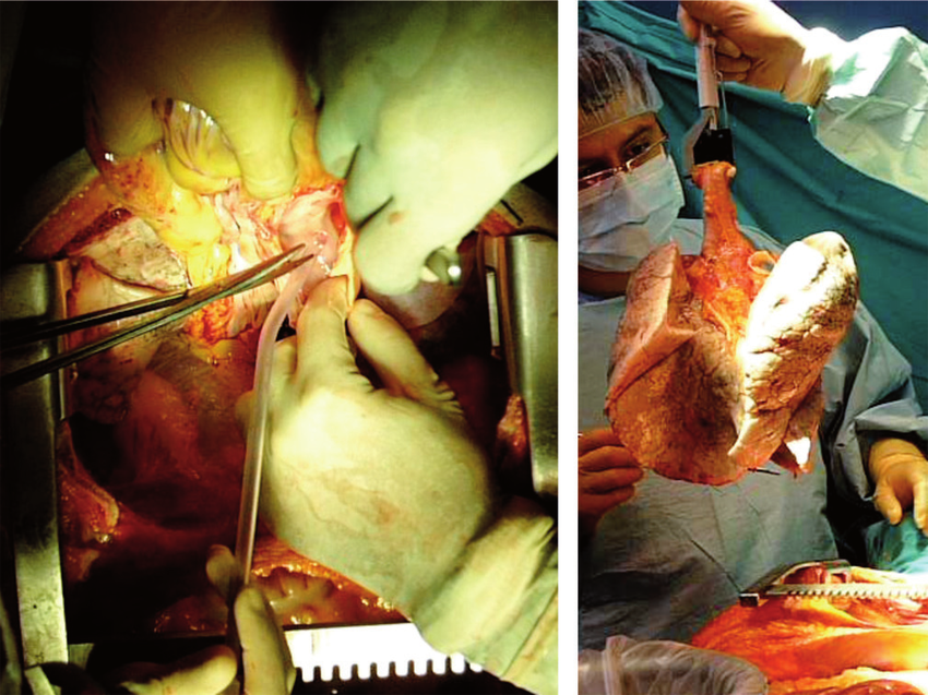 (a) Cardiectomy. (b) En bloc extraction of both lungs.