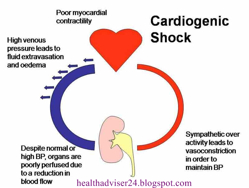 Dopamine - is the drug of first choice in cardiogenic shock