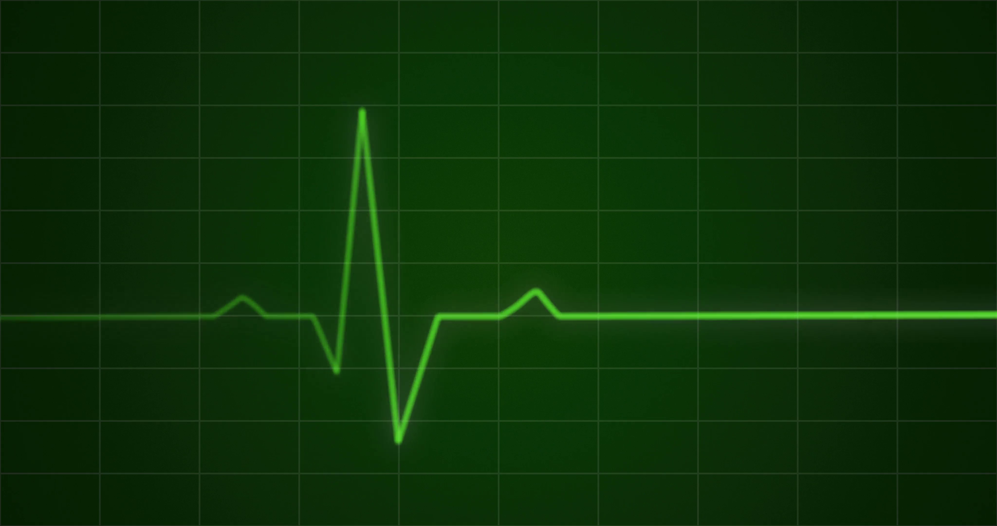 Concept animation of an ECG or EKG heartbeat cardiogram on a green monitor  in 4k. Motion Background - Storyblocks Video
