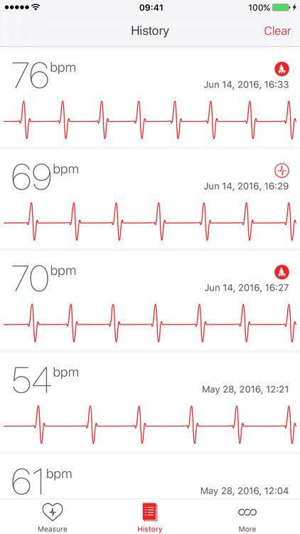 Cardiograph screenshot-2