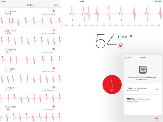 Screenshot #3 for Cardiograph