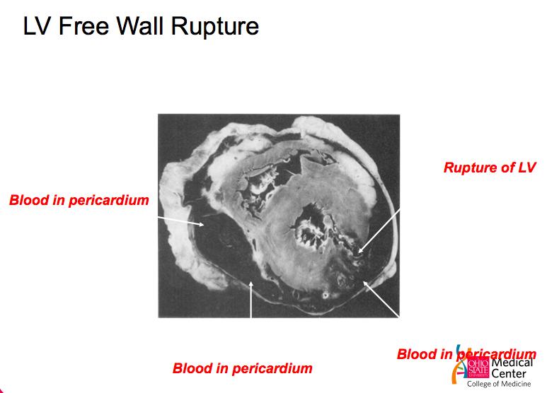 Characterize LV free wall rupture (cardiorrhexis) - pathophysiology,  presentation, diagnosis, &