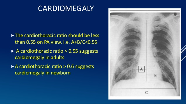 cardiothoracic ratio