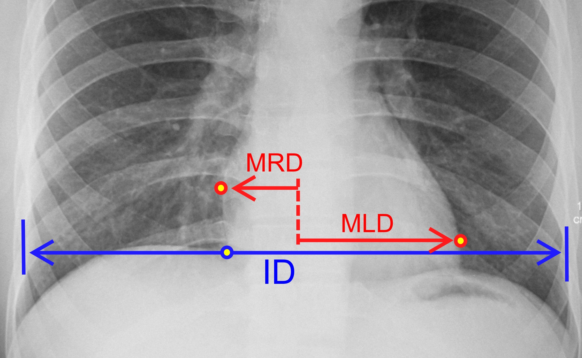 File:Cardiothoracic ratio.jpg
