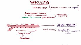 Archivo:Vasculitis video.webm