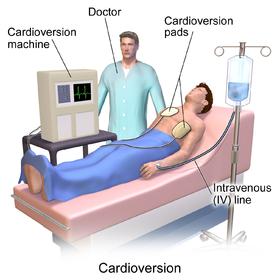 Blausen 0169 Cardioversion.png
