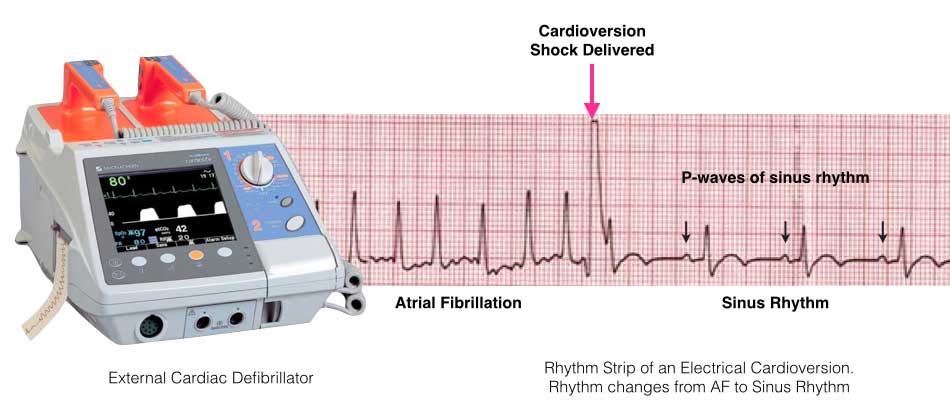 Electrical Cardioversion