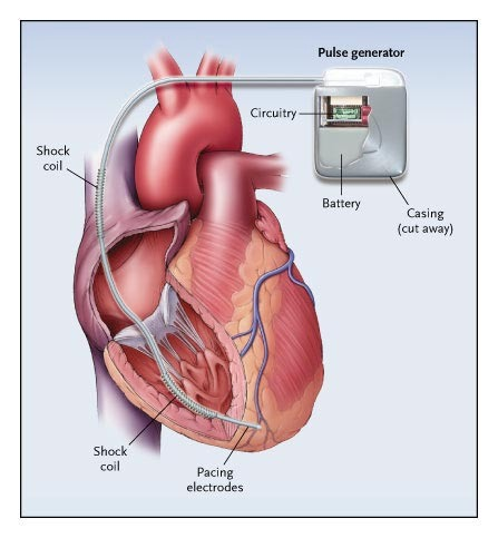 Diagram of a Single-Chamber Implantable Cardioverter–Defibrillator System.