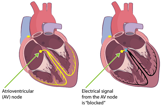 The cross-section of the heart on the left shows the electrical signals as  they