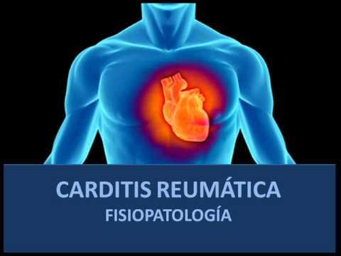 Carditis reumática - Fisiopatología