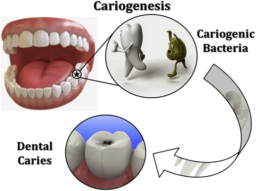 Formation of dental caries by cariogenic bacteria.