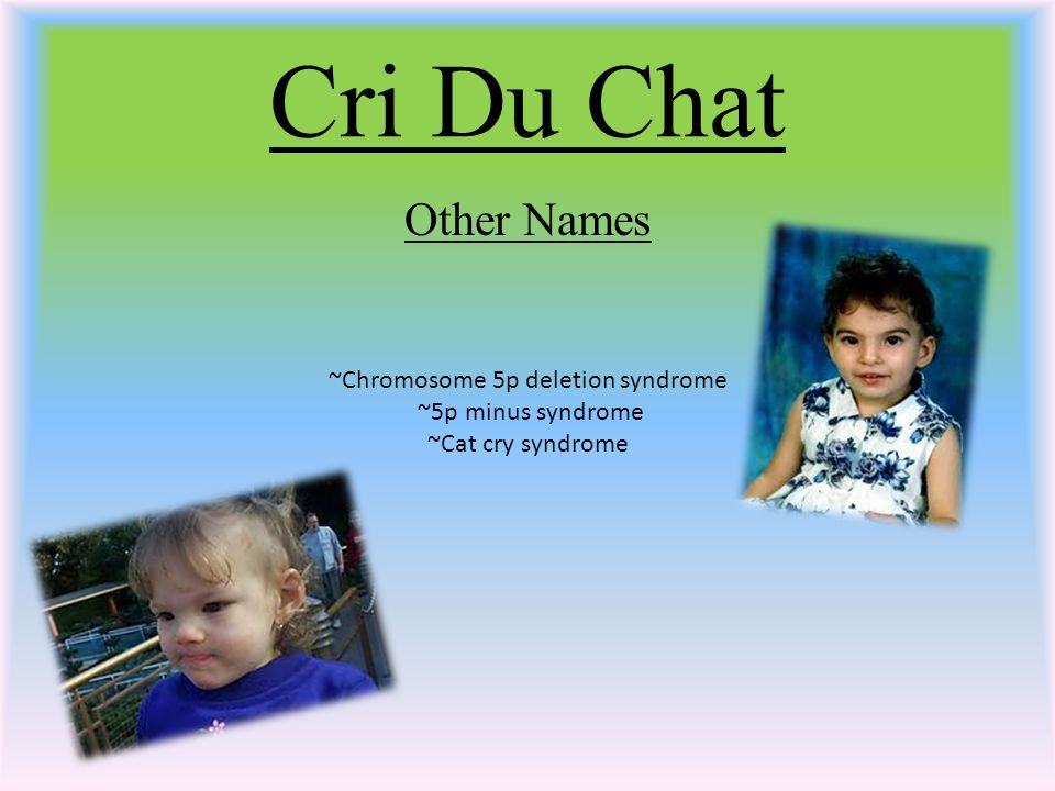 1 Cri Du Chat Other Names ~Chromosome 5p deletion syndrome ~5p minus  syndrome ~Cat cry syndrome