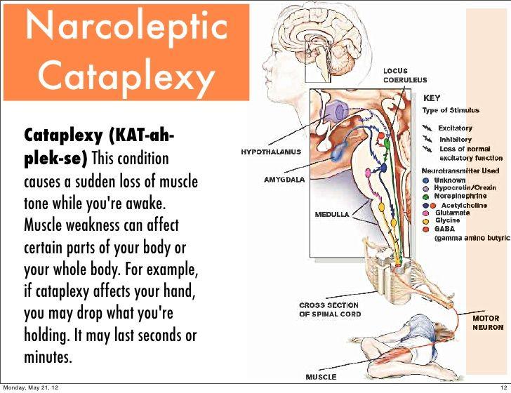 Narcoleptic Cataplexy .