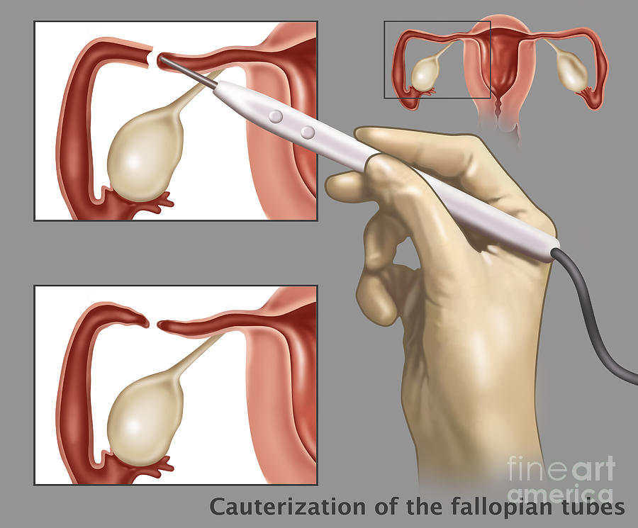 Science Photograph - Cauterization Of The Fallopian Tubes by Gwen Shockey