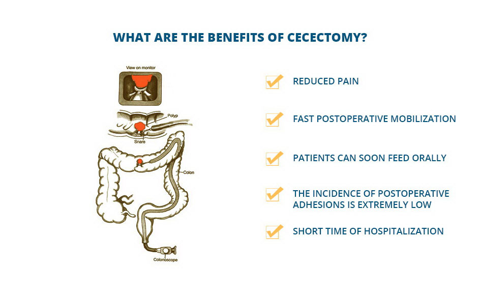 What Are the Affections that May Lead to Cecectomy?