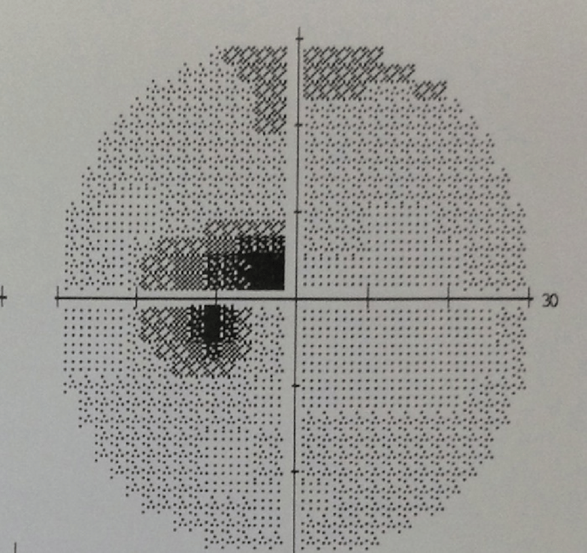Left Humphrey 30-2 visual field showing a cecocentral scotoma of the  proband F1 II