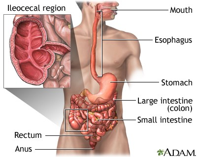 These include the lack of normal attachments that can allow the cecum to  move around more than it should, or several underlying medical conditions  such as: