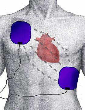 Defibrillation Electrode Position.jpg