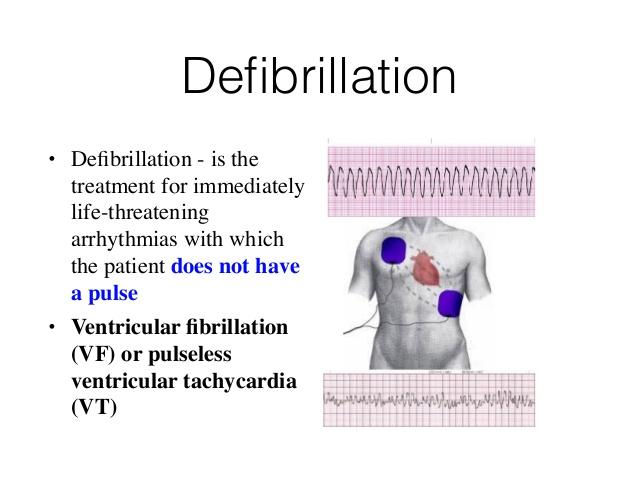 Defibrillation • Defibrillation