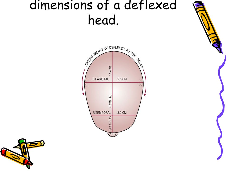 14 Figure 31.5 Presenting dimensions of a deflexed head.