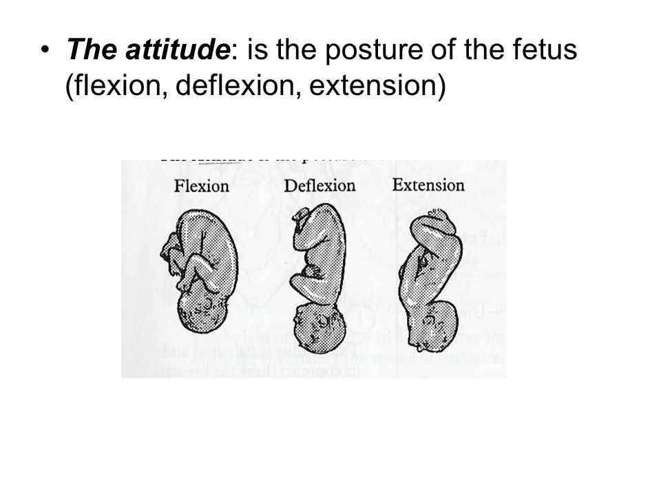 4 The attitude: is the posture of the fetus (flexion, deflexion, extension)
