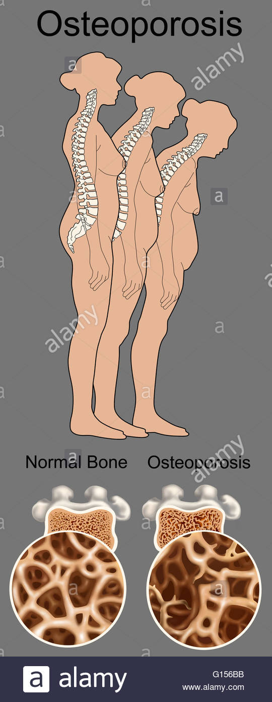 Illustration of a human female skeleton degenerating due to osteoporosis.  The degeneration, seen from left to right over time, is the loss of height  and the