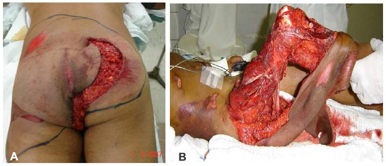 Degloving Area Extension after demarcation. Figure 1b - Circumferential  open degloving in lower limb - initial evaluation in the emergency room.