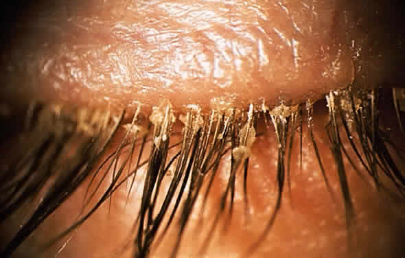 Demodex Infestation of the Eyelashes