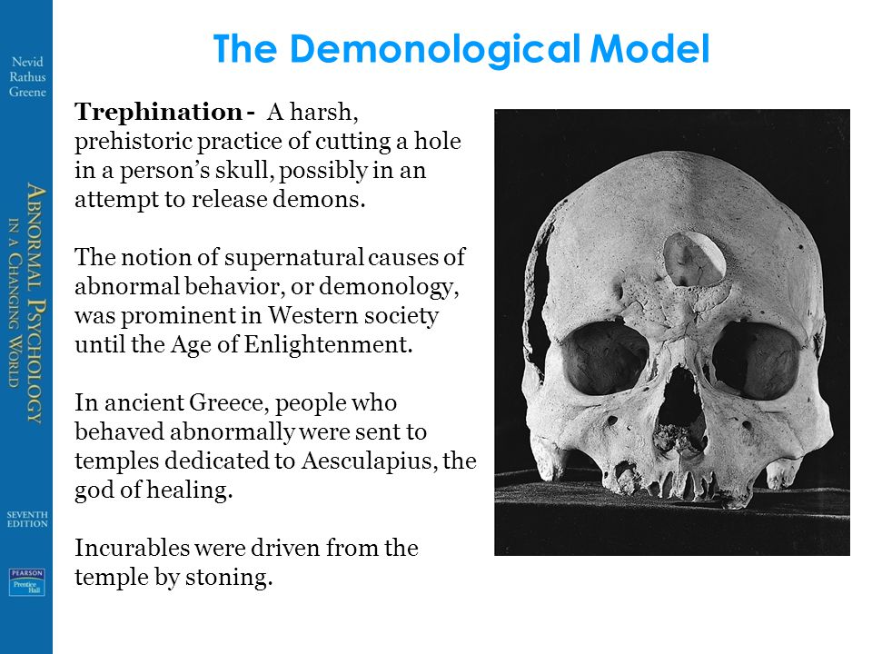 The Demonological Model Trephination - A harsh, prehistoric practice of  cutting a hole in a