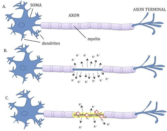 Demyelination of Nerve