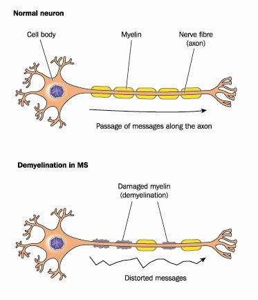 demyelinating neuron