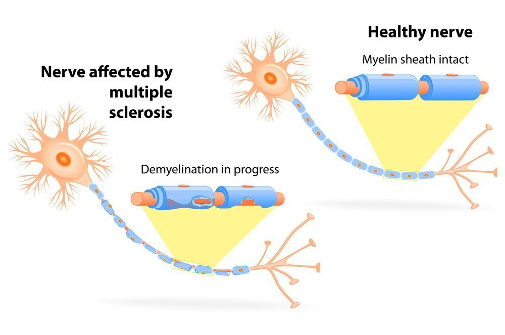 demyelinating diseases