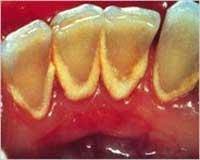 Moderate Dental Calculus